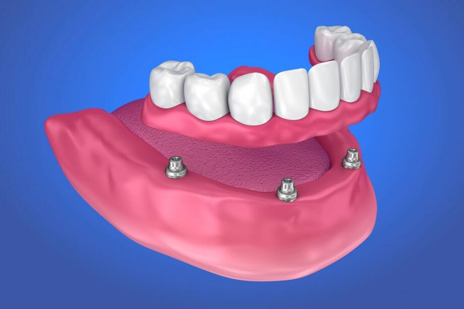 All-On-4 Dental Implant Cost - Periodontal Associates Inc