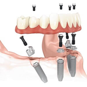 Dental Implant Supported Restorations in Newton