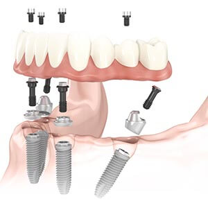 Dental Implant Supported Restorations in Framingham