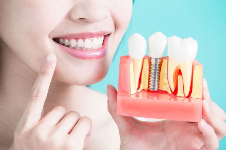 The Advantages (and Disadvantages) of Dental Implants