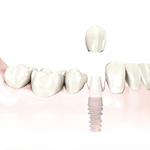 Single Dental Implants in Newton & Framingham