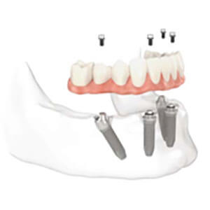 Full Mouth Restoration Procedure Framingham, MA